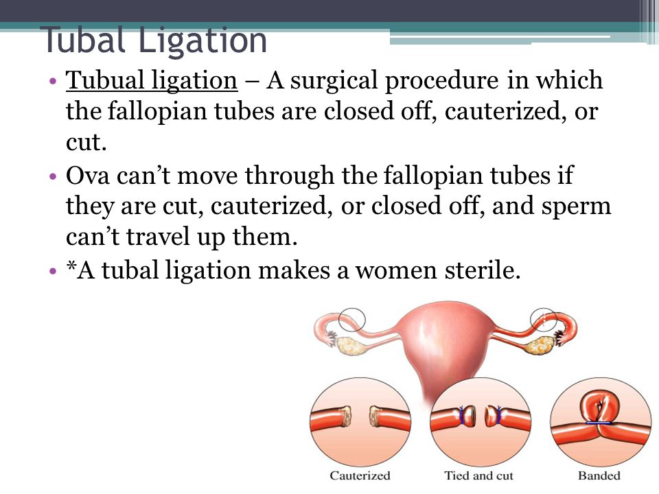 Tubal Ligation Tubual ligation – A surgical procedure in which the fallopian tubes are closed off, cauterized, or cut.