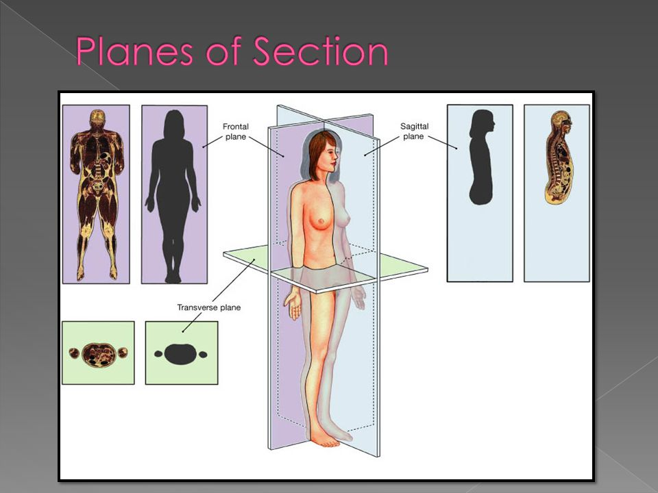 Planes of Section