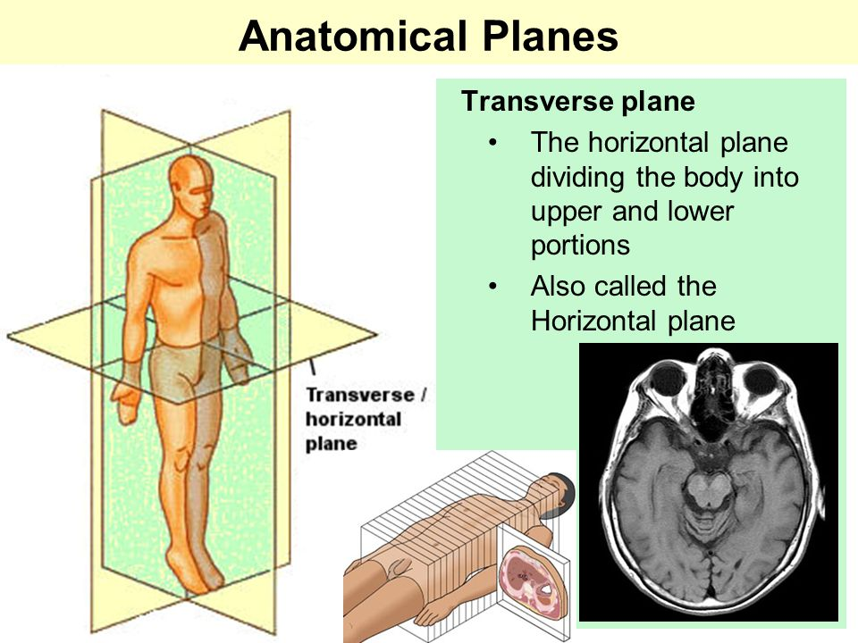 Anatomical Planes Transverse plane