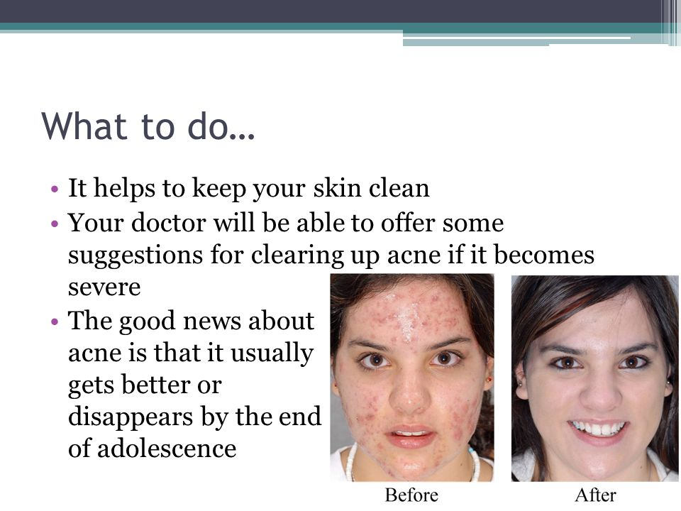 What to do… It helps to keep your skin clean