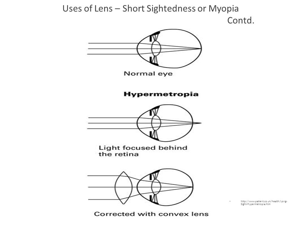 Uses of Lens – Short Sightedness or Myopia Contd.