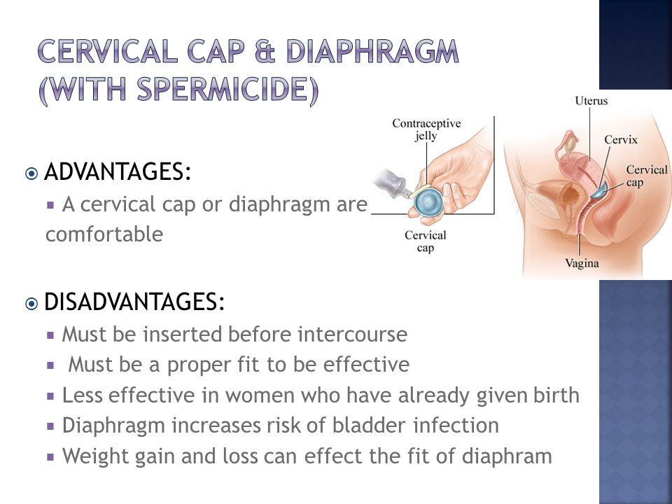 Cervical cap & Diaphragm (with spermicide)