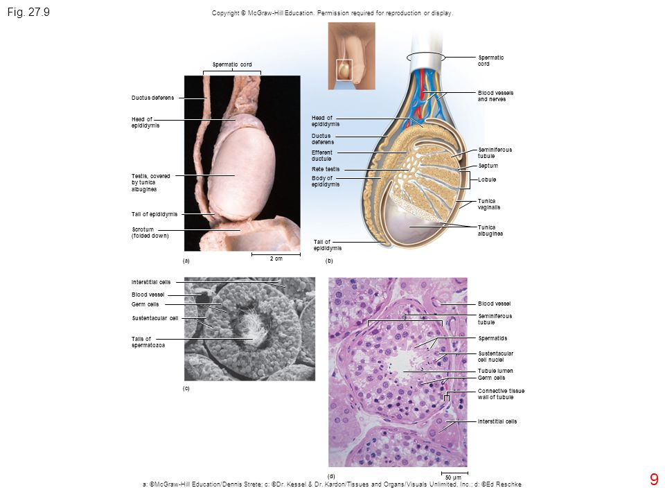 Fig. 27.9 Copyright © McGraw-Hill Education. Permission required for reproduction or display. Spermatic.