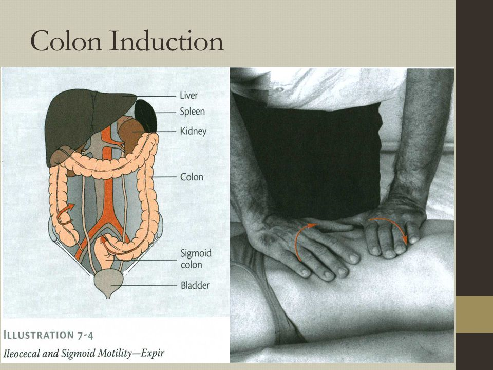 Colon Induction