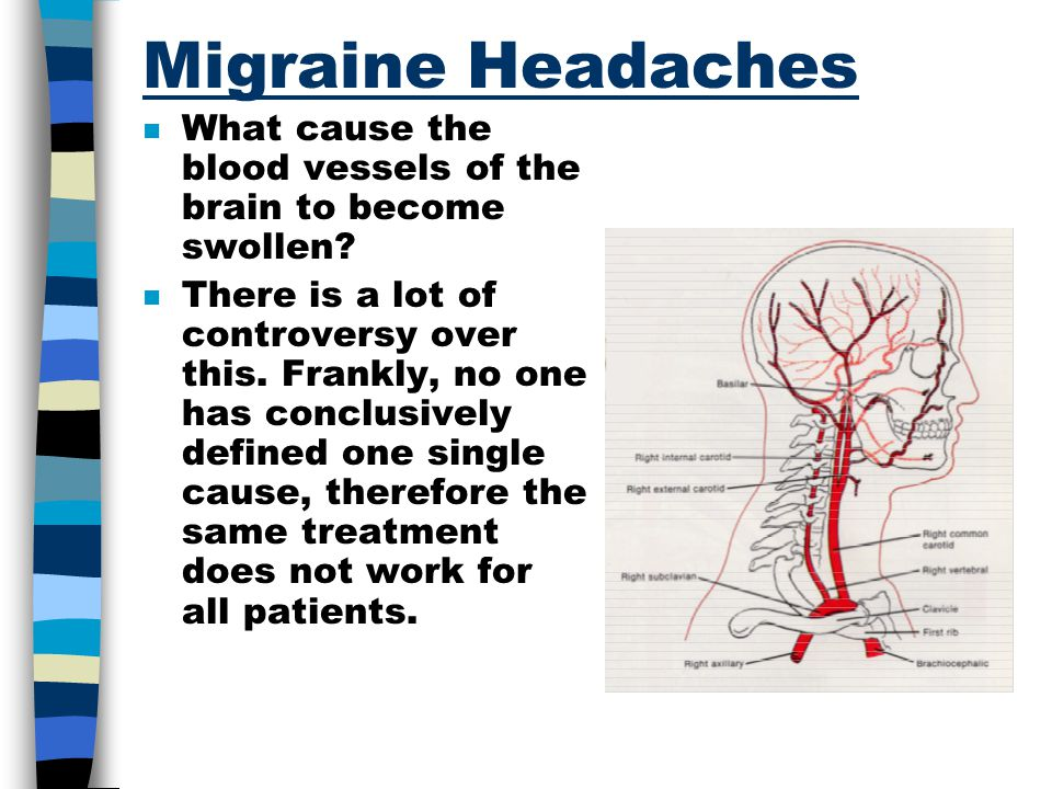 Migraine Headaches What cause the blood vessels of the brain to become swollen