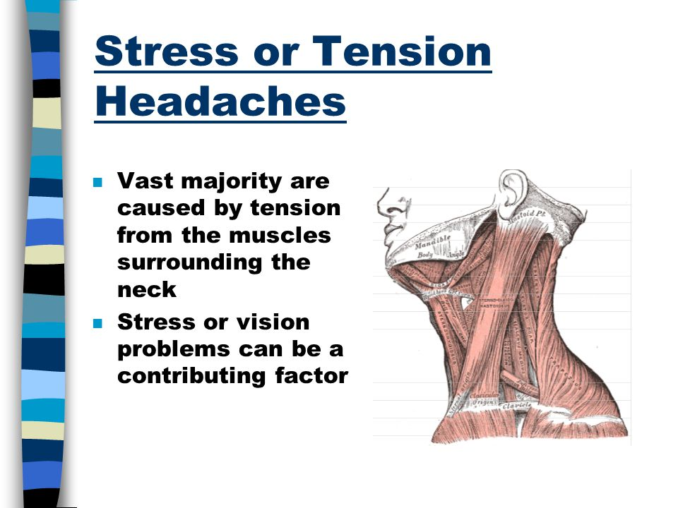 Stress or Tension Headaches