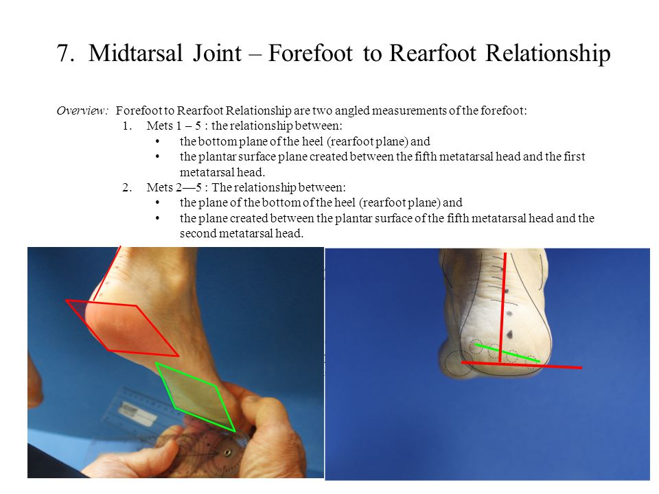 7. Midtarsal Joint – Forefoot to Rearfoot Relationship