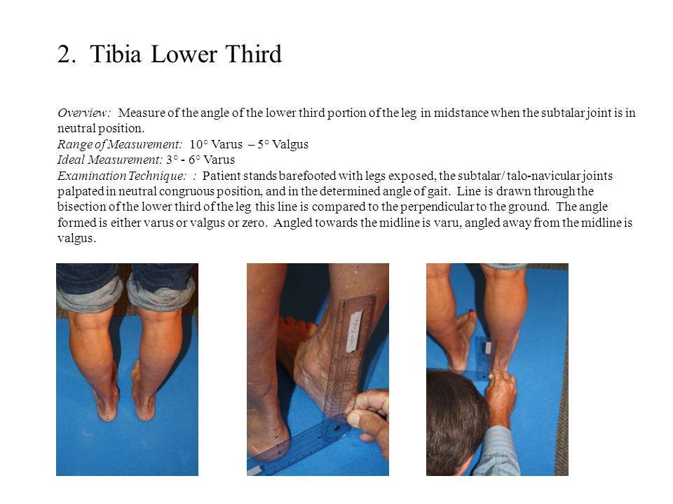 2. Tibia Lower Third