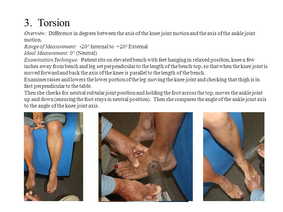 3. Torsion Overview: Difference in degrees between the axis of the knee joint motion and the axis of the ankle joint motion.