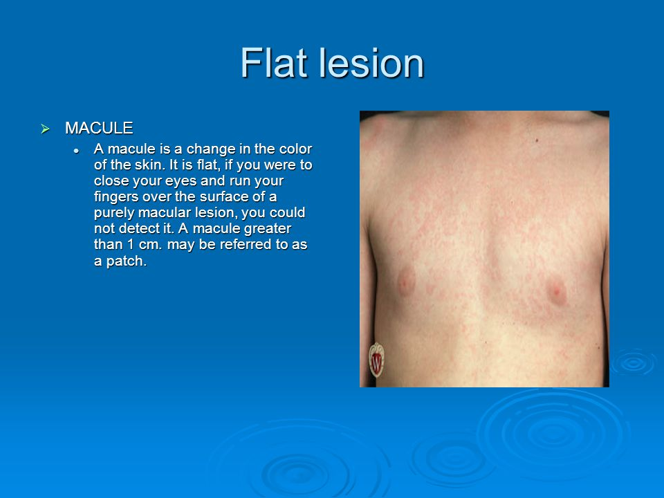 Flat lesion MACULE.