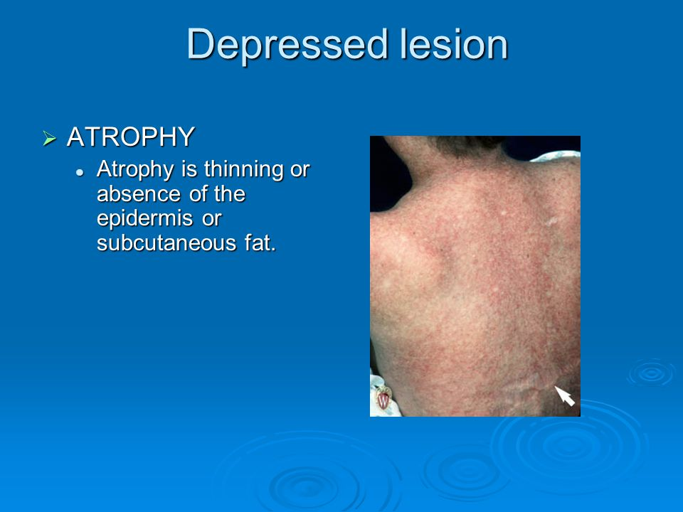 Depressed lesion ATROPHY