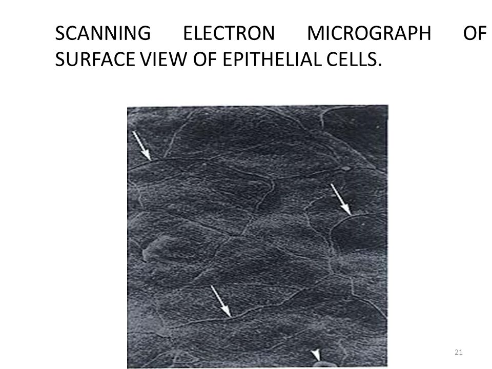 SCANNING ELECTRON MICROGRAPH OF SURFACE VIEW OF EPITHELIAL CELLS.