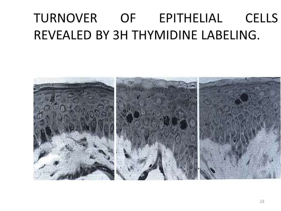 TURNOVER OF EPITHELIAL CELLS REVEALED BY 3H THYMIDINE LABELING.