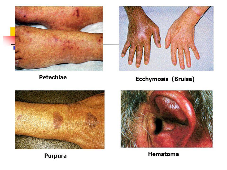 Petechiae Ecchymosis (Bruise) Hematoma Purpura