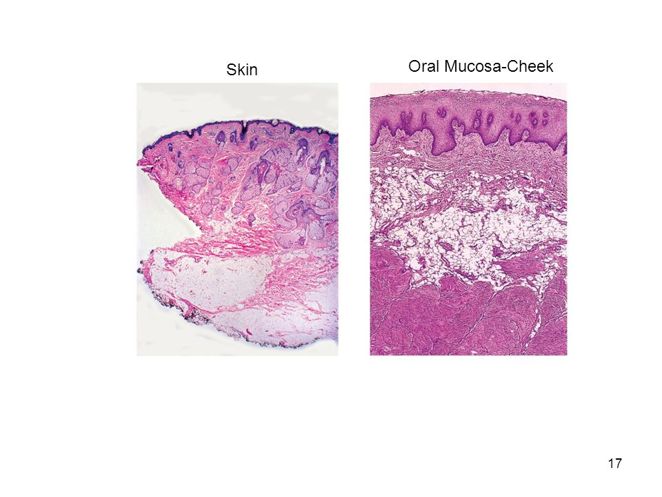 Skin Oral Mucosa-Cheek