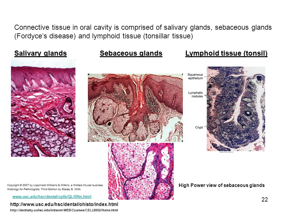(Fordyce's disease) and lymphoid tissue (tonsillar tissue)