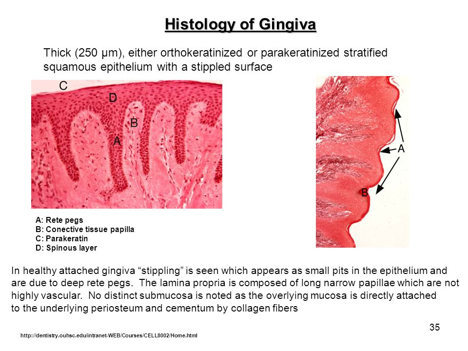 Histology of Gingiva Thick (250 µm), either orthokeratinized or parakeratinized stratified. squamous epithelium with a stippled surface.