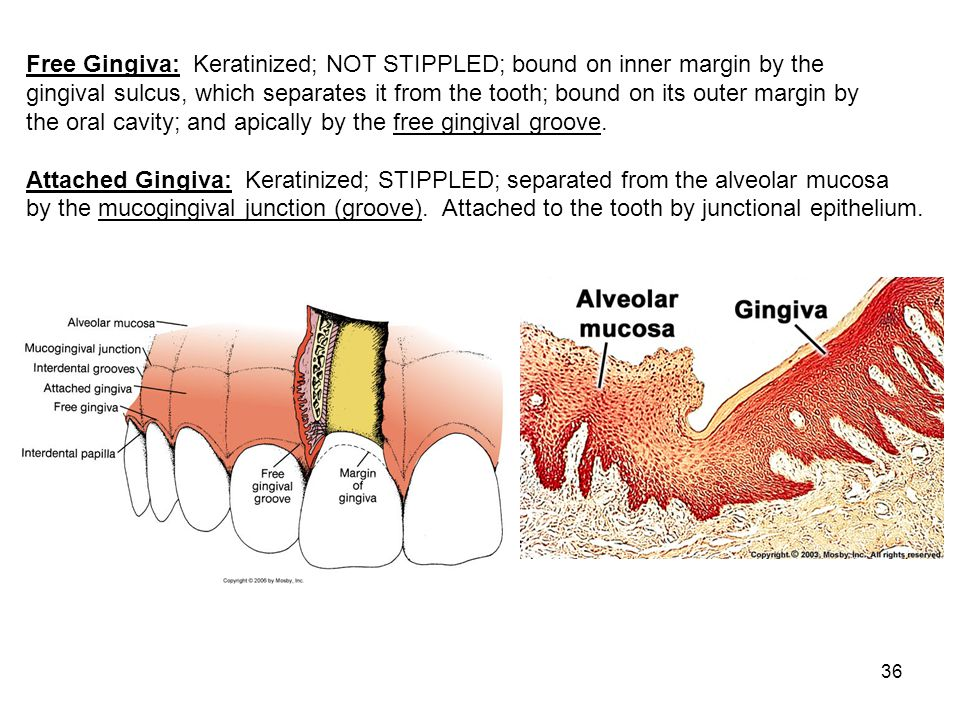 Free Gingiva: Keratinized; NOT STIPPLED; bound on inner margin by the
