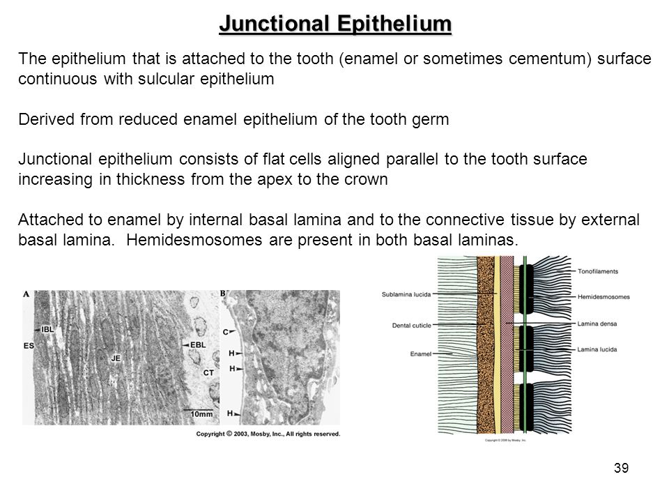 Junctional Epithelium
