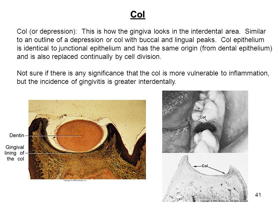 Col Col (or depression): This is how the gingiva looks in the interdental area. Similar.