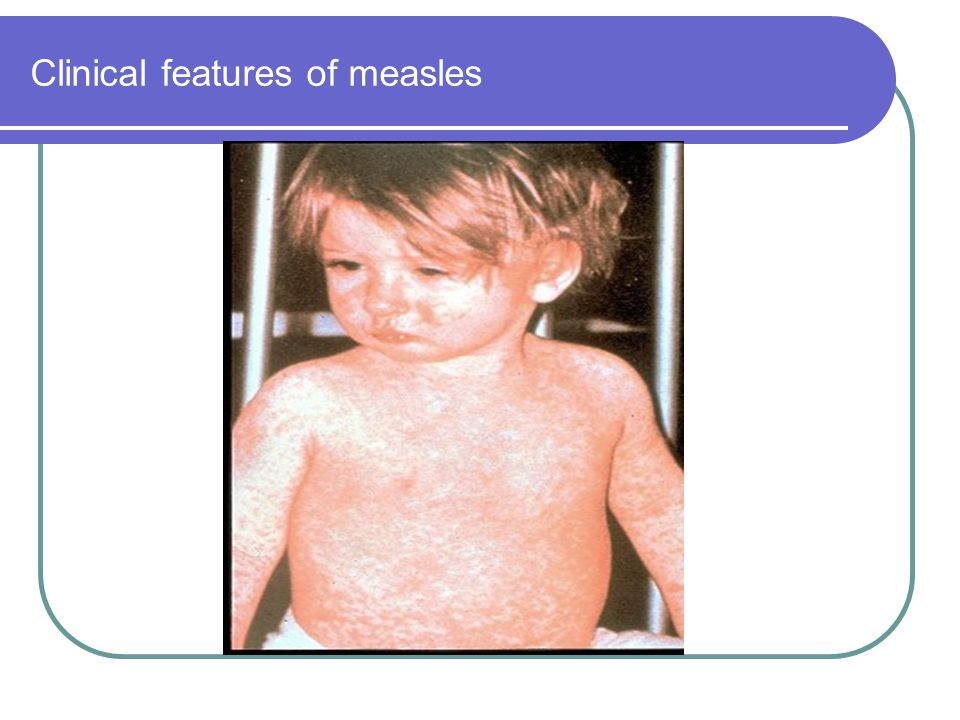 Clinical features of measles
