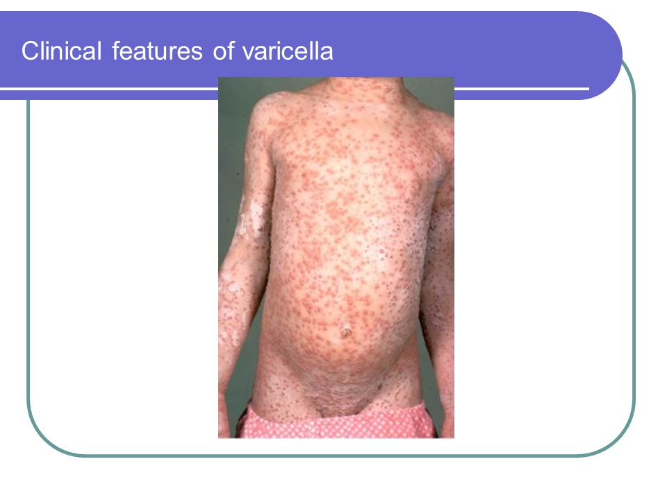 Clinical features of varicella