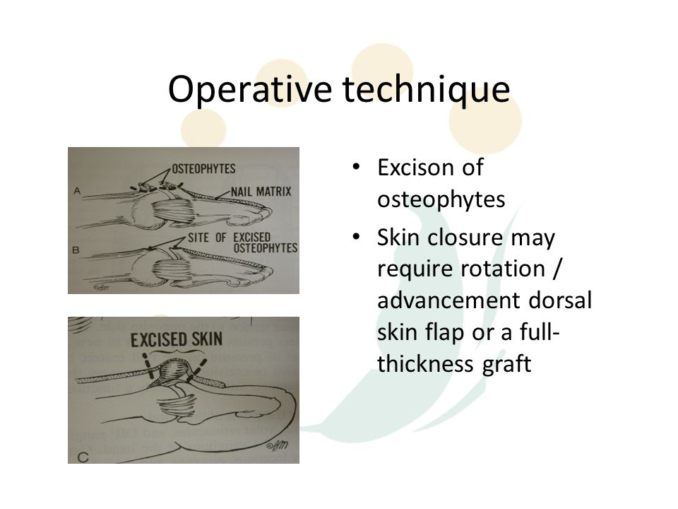 Operative technique Excison of osteophytes