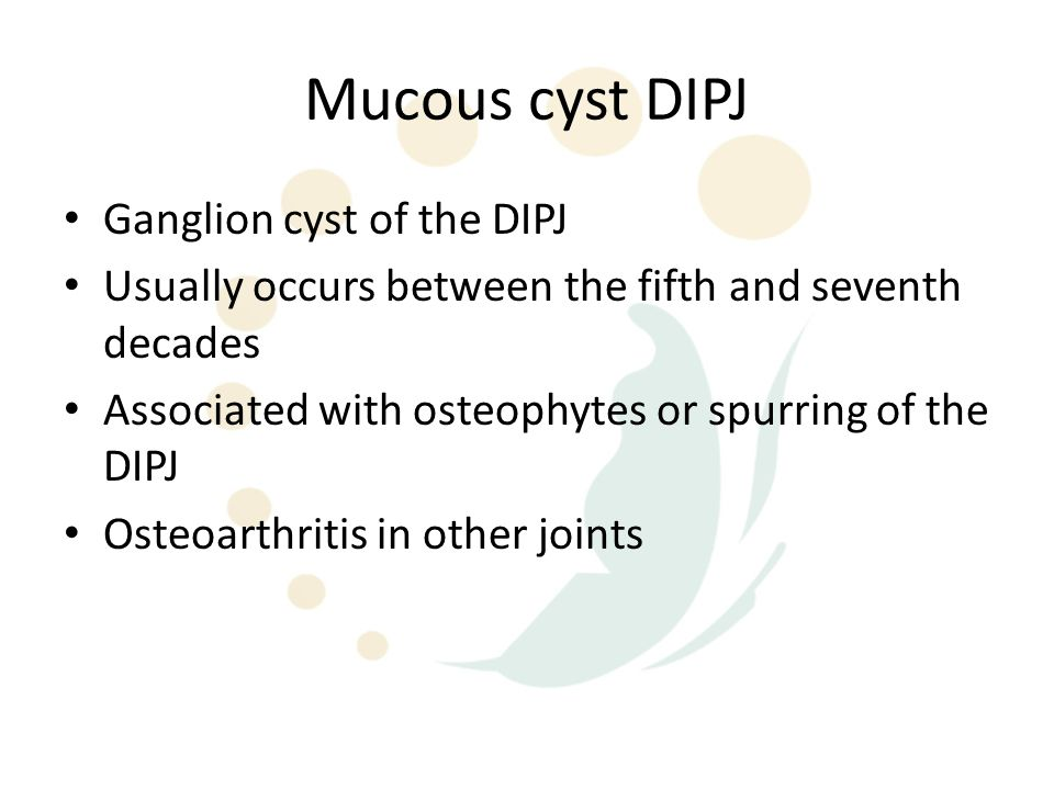 Mucous cyst DIPJ Ganglion cyst of the DIPJ
