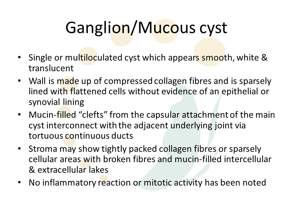 Ganglion/Mucous cyst Single or multiloculated cyst which appears smooth, white & translucent.