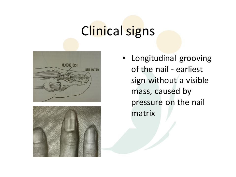 Clinical signs Longitudinal grooving of the nail - earliest sign without a visible mass, caused by pressure on the nail matrix.