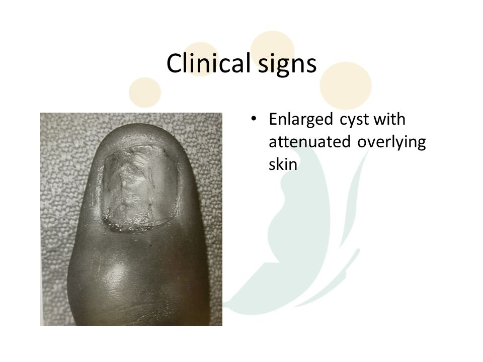 Clinical signs Enlarged cyst with attenuated overlying skin