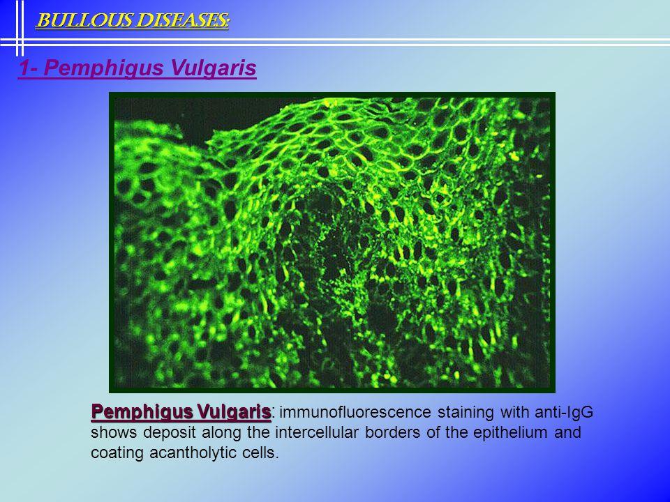 Bullous Diseases: 1- Pemphigus Vulgaris.