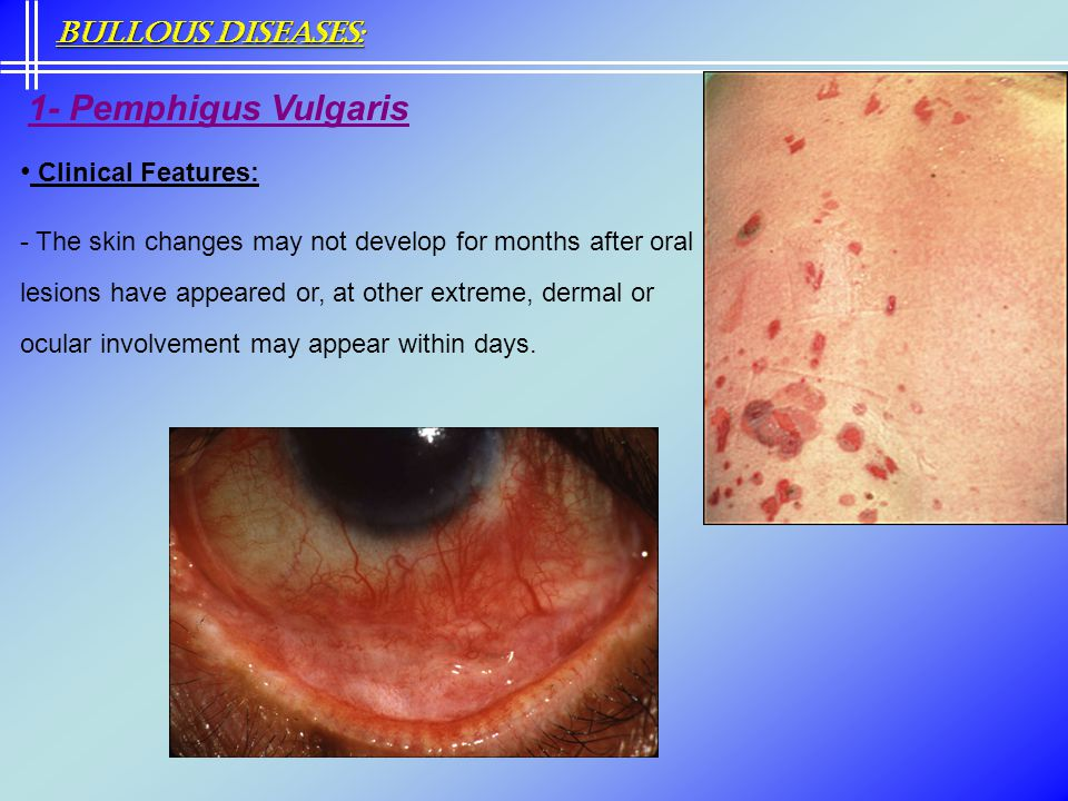 Bullous Diseases: Clinical Features: 1- Pemphigus Vulgaris