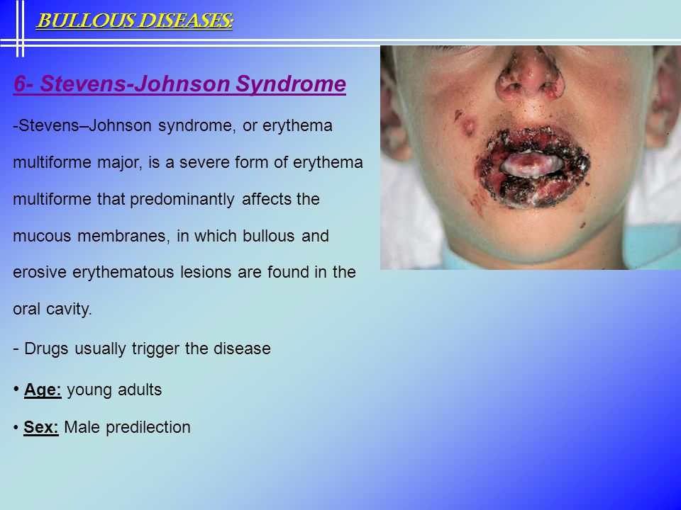 6- Stevens-Johnson Syndrome