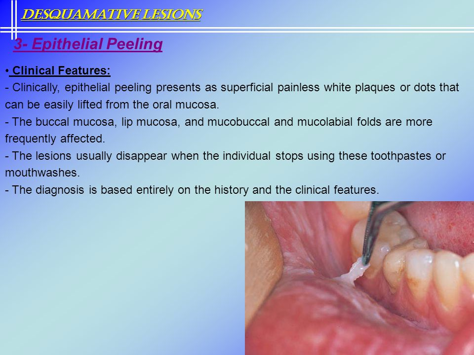 3- Epithelial Peeling Desquamative Lesions Clinical Features: