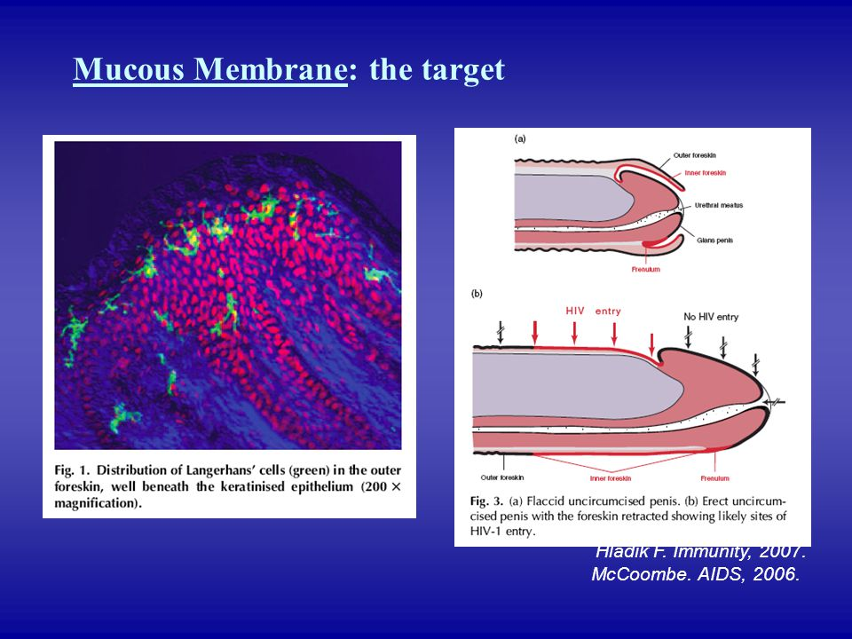 Mucous Membrane: the target