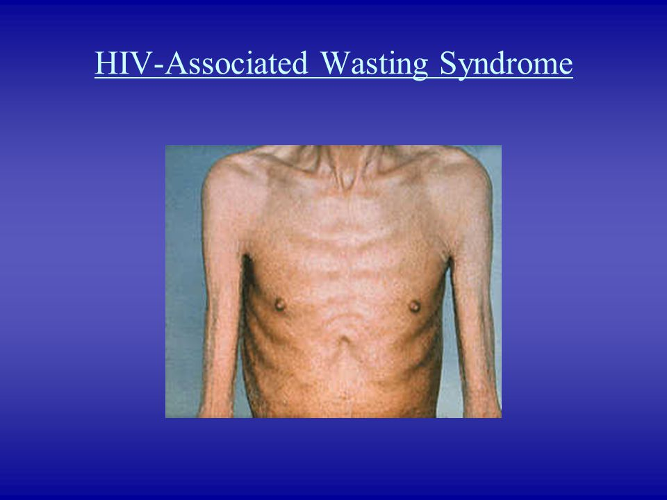 HIV-Associated Wasting Syndrome