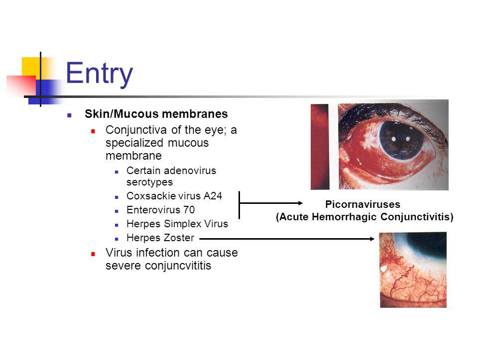 (Acute Hemorrhagic Conjunctivitis)