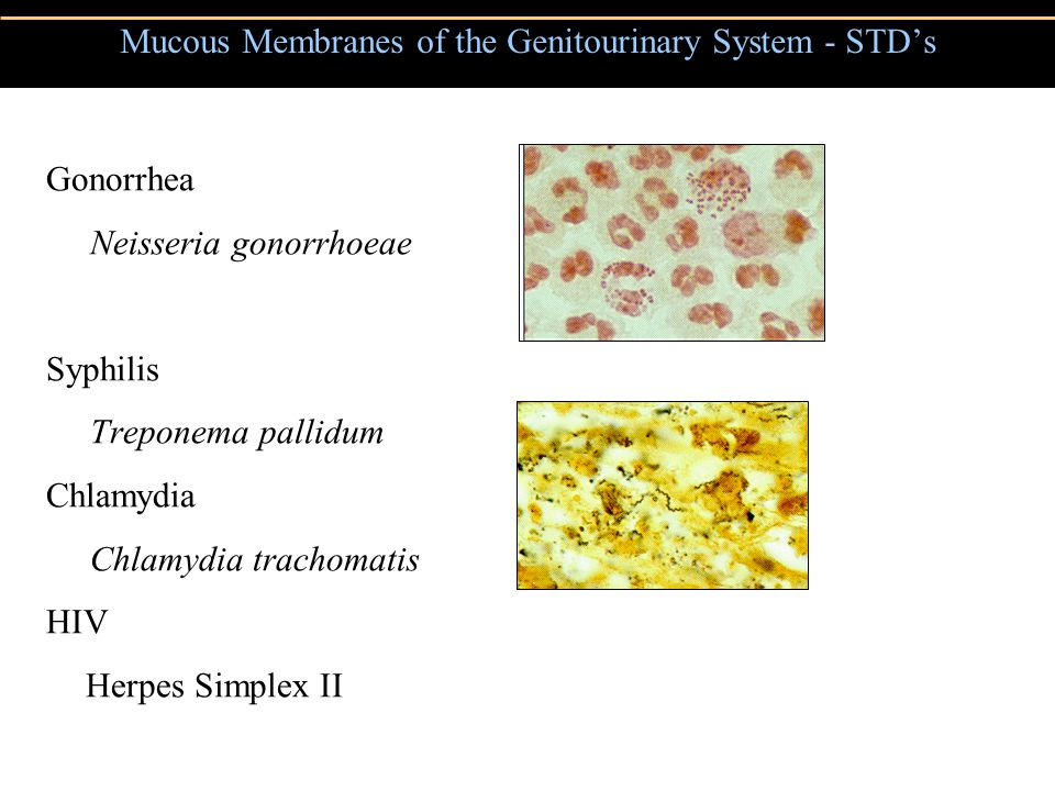Mucous Membranes of the Genitourinary System - STD's