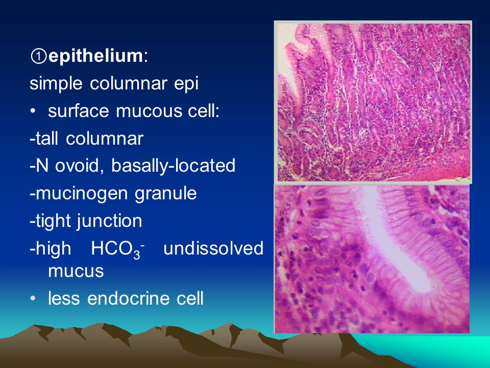 ①epithelium: simple columnar epi. surface mucous cell: -tall columnar. -N ovoid, basally-located.