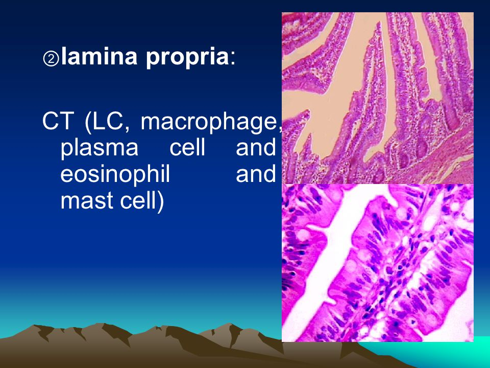 CT (LC, macrophage, plasma cell and eosinophil and mast cell)