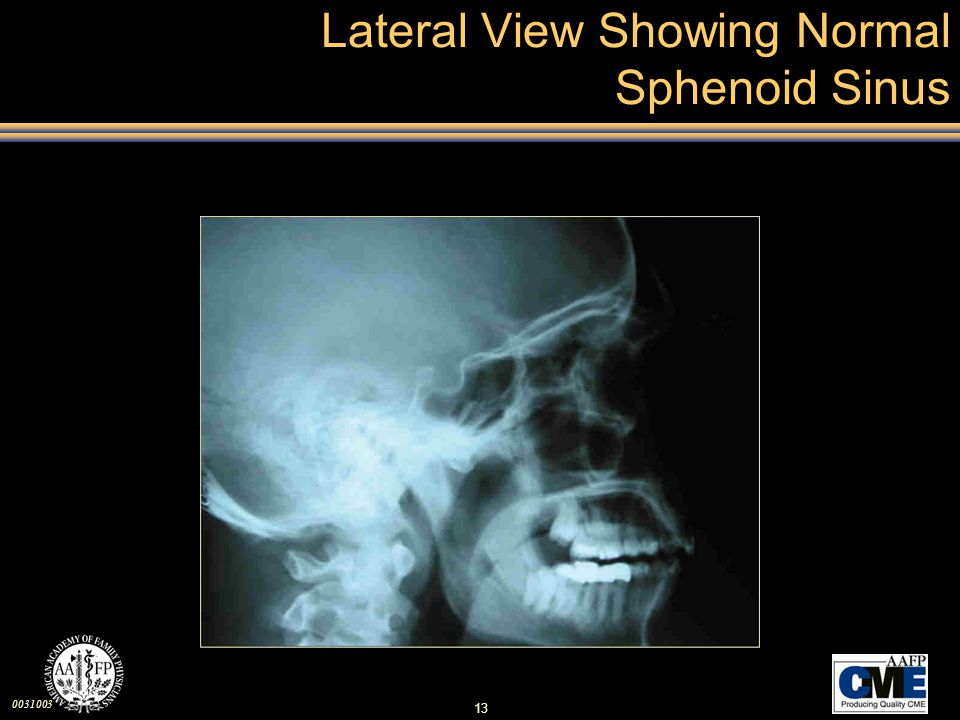 Lateral View Showing Normal Sphenoid Sinus