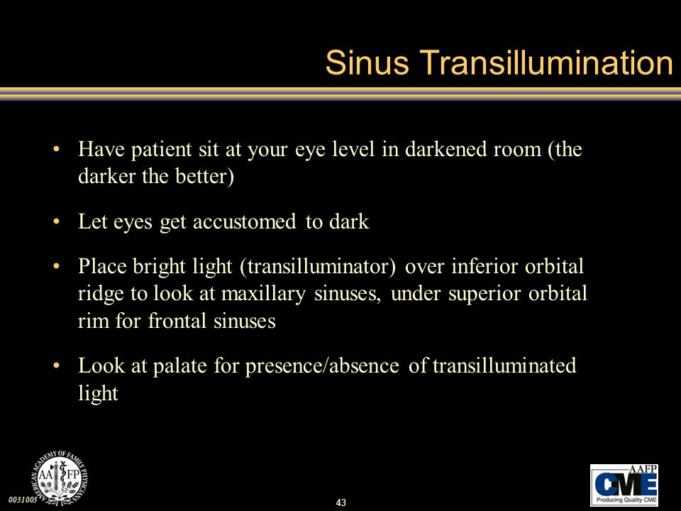 Sinus Transillumination
