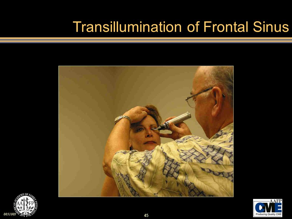 Transillumination of Frontal Sinus