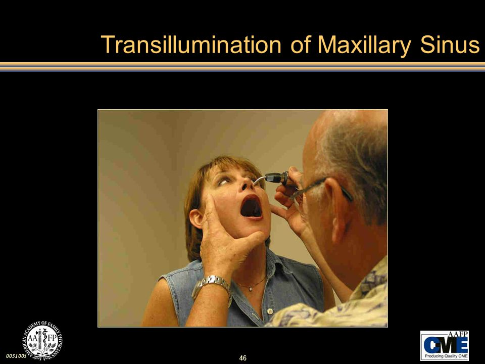 Transillumination of Maxillary Sinus
