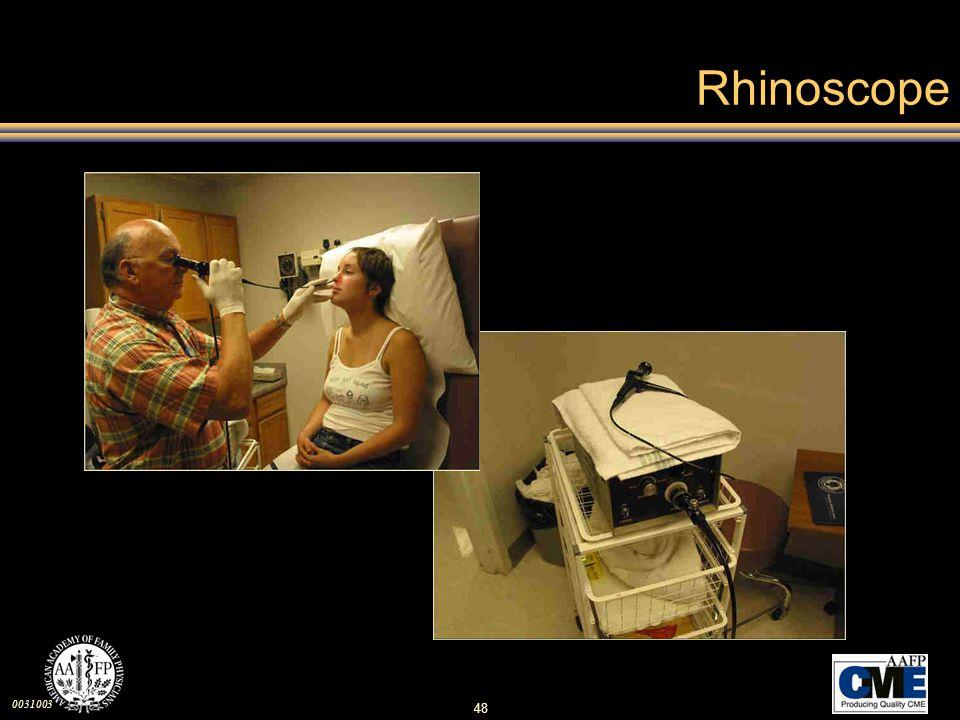 Rhinoscope