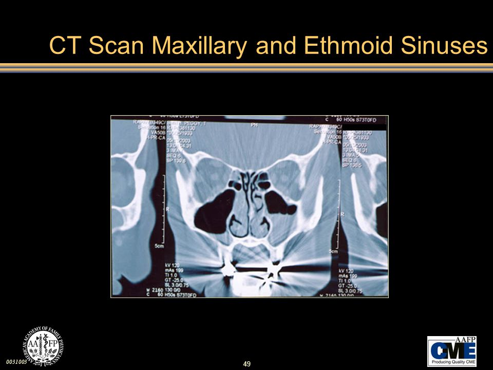 CT Scan Maxillary and Ethmoid Sinuses