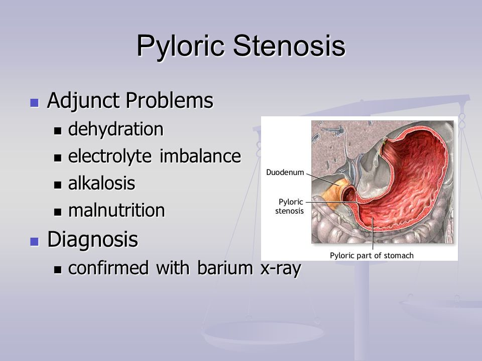 Pyloric Stenosis Adjunct Problems Diagnosis dehydration