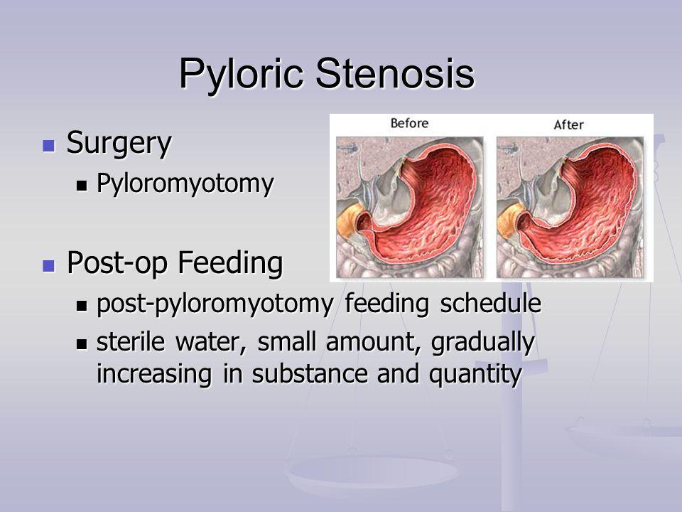 Pyloric Stenosis Surgery Post-op Feeding Pyloromyotomy