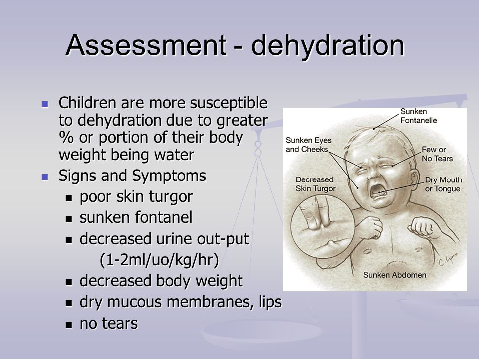 Assessment - dehydration